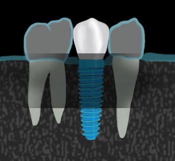Dental Implants, All on 4 Implants