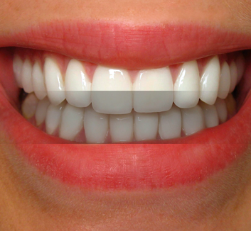 Porcelain Veneers, Underbite Correction