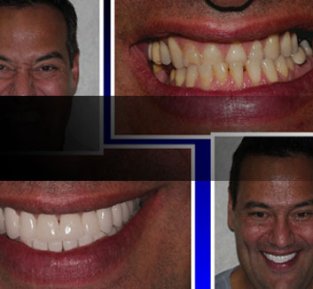 Underbite Correction